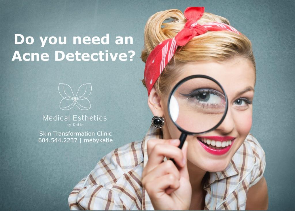 acne-detective-mebykatie